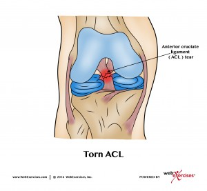 Knee ACL Tear